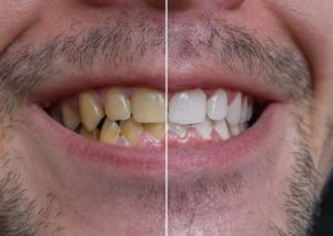 yellow to white teeth with a dentist in Westhampton